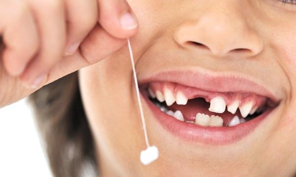 Удаление молочных зубов у детей показания