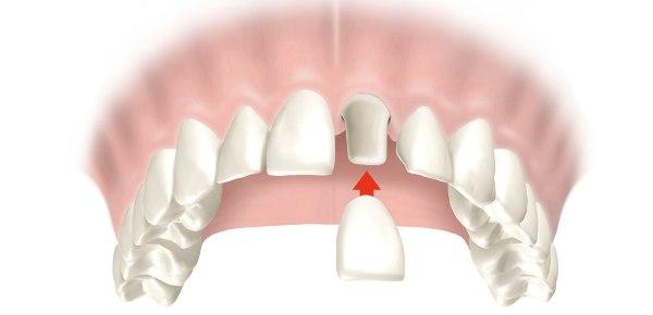 Хирургическое удлинение коронки зуба