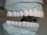 Техника воскового моделирования зубов