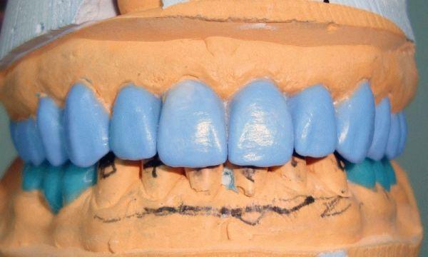 Методики воскового моделирования зубов