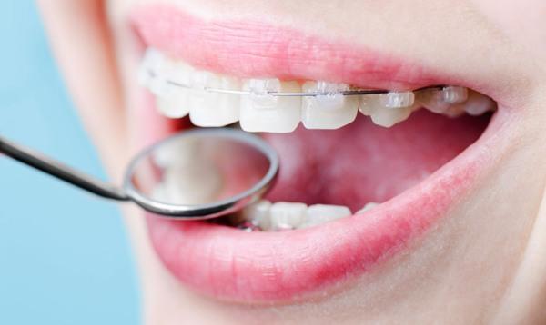 Фото керамических брекетов на зубах пациентов