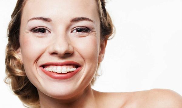 Керамические брекеты на зубах фото