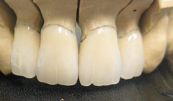 Срок службы металлокерамических коронок Vita