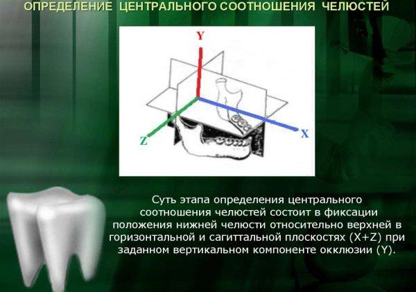 Ошибки при определении центральной окклюзии и методы контроля правильности