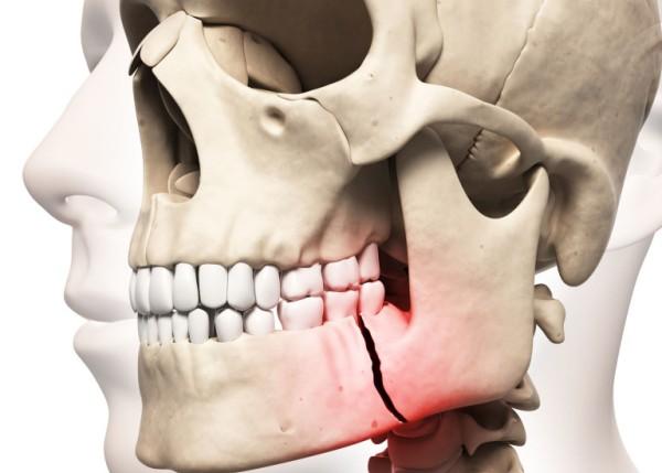 Сроки реабилитации после закрытого остеосинтеза челюсти
