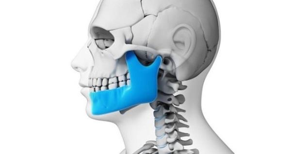 Остеосинтез при переломе нижней челюсти