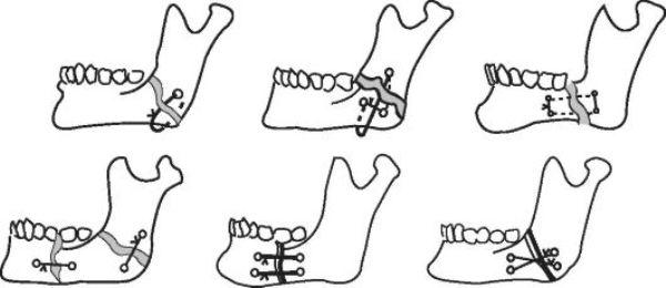 Остеосинтез верхней челюсти