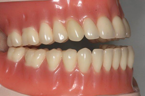 Полный съемный протез с зубами от Ivoclar