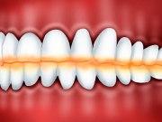 Причины стирания зубов
