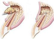 Проведение цистэктомии зуба
