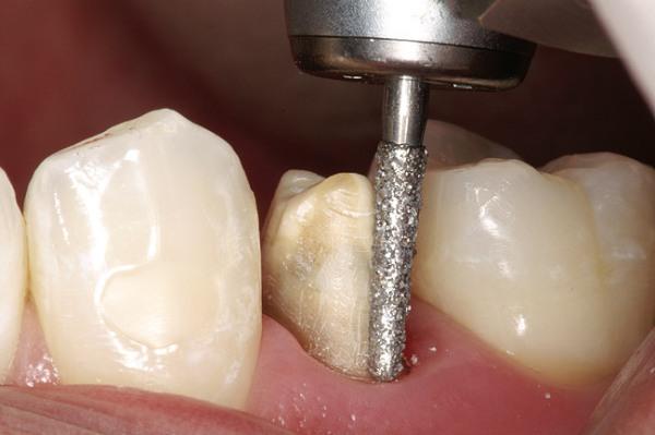 Титановые коронки на зубы цена