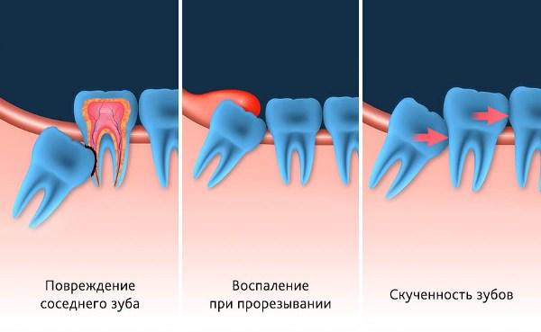 Удаление капюшона зуба мудрости отзывы