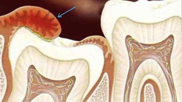 Особенности удаления капюшона над зубом мудрости