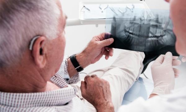 Рентген перед удалением подвижного зуба