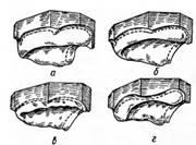 Особенности классификации атрофии альвеолярного отростка