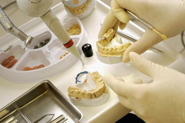 Классификация гипса в стоматологии