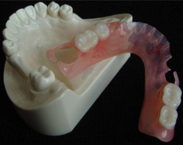 Достоинства и недостатки зубных протезов Flexite