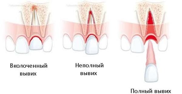 Репозиция зуба
