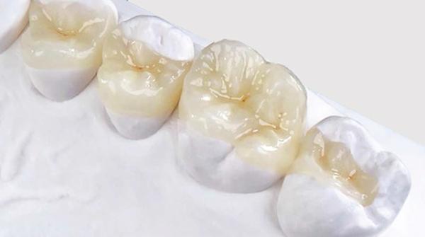 Реставрация с помощью керамической вкладки на зуб