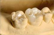 Особенности керамических вкладок на зуб