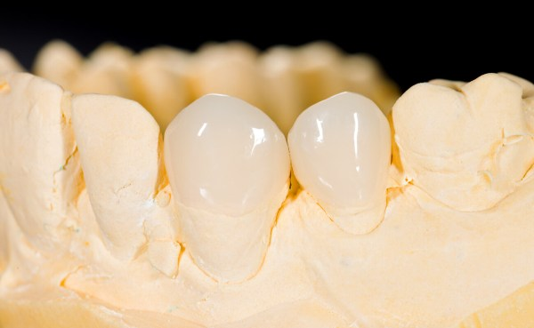 Керамическая вкладка на зуб плюсы и минусы