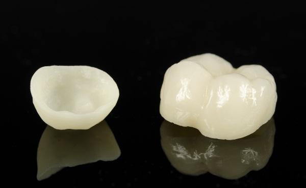 Керамическая вкладка на передний зуб цена