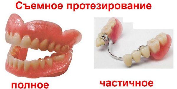Полировка зубных протезов