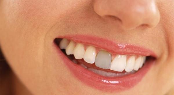 Эффективность проведения репозиции зуба при его вывихе