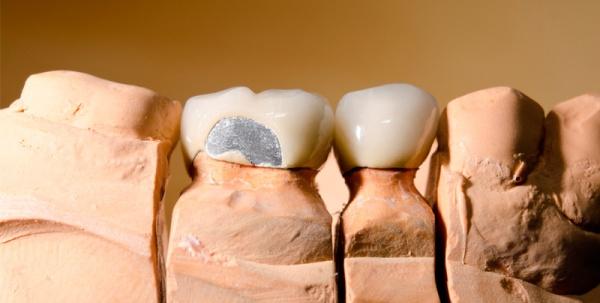 Способы реставрации сколов керамики на коронке