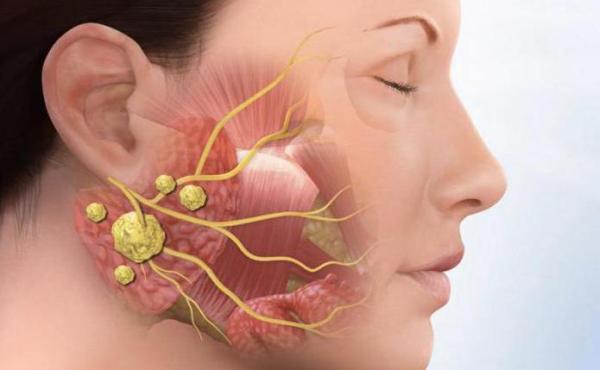 Лечение или удаление камня из протока слюнной железы