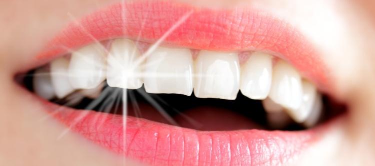 как виниры устанавливаются на зубы