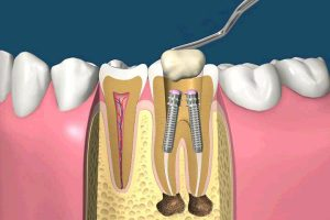 Преимущества применения анкерного штифта в стоматологии для реставрации зуба