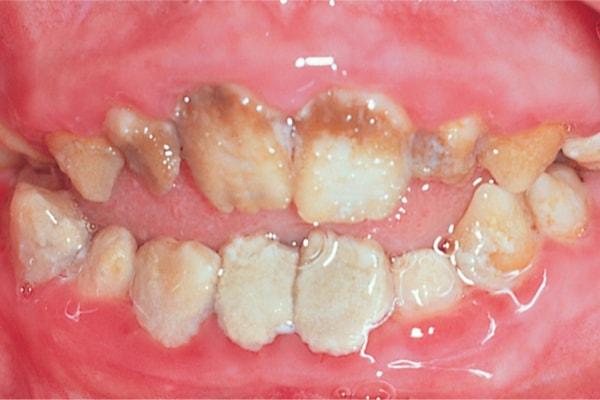 Бычьи зубы