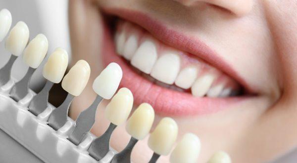 Эрозия эмали зубов этиология