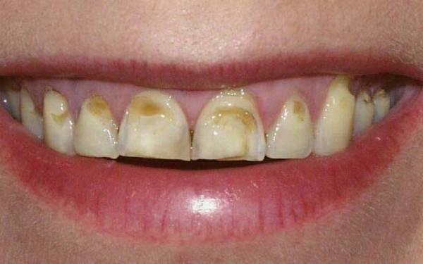 Эрозия эмали зубов фото