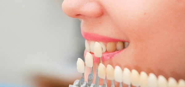 Художественная реставрация передних зубов цена