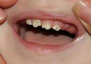 Разрушение эмали зубов у детей причины