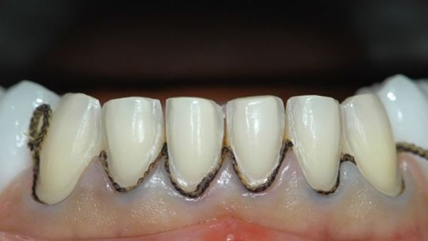 Ретракционная нить в стоматологии цена