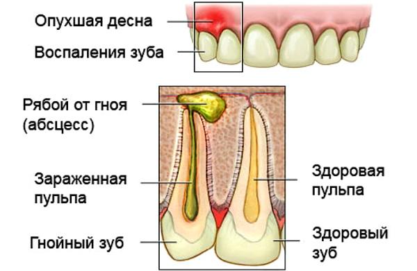 Острый гнойный пульпит зуба у детей