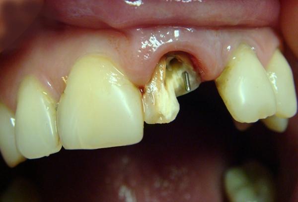 Штифты парапульпарные титановые в стоматологии