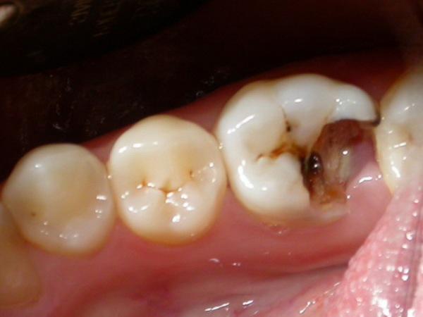 Стекловолоконный штифт в стоматологии цена