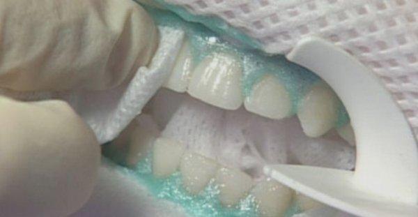 Трещины на зубной эмали лечение