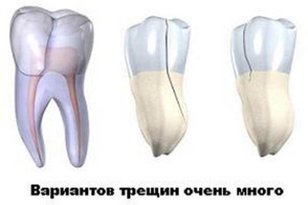 Трещина эмали на переднем зубе