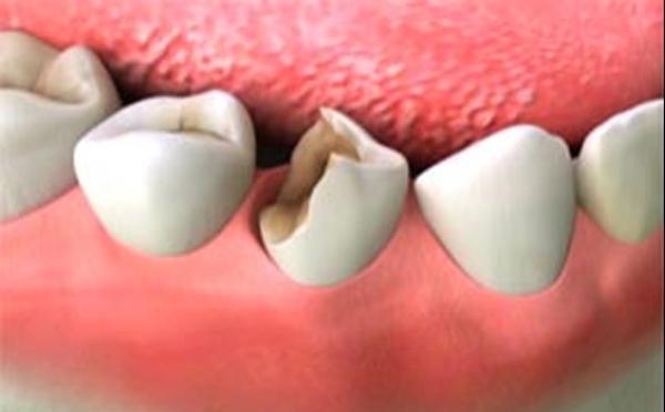 Трещины на зубной эмали