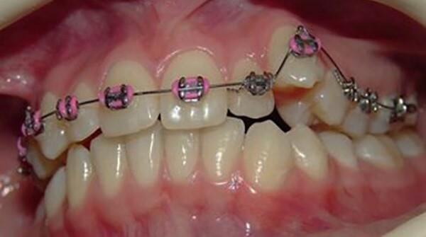Удаление ретинированного сверхкомплектного зуба у взрослого