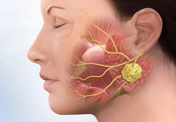 Диагностика и лечение флегмоны зуба