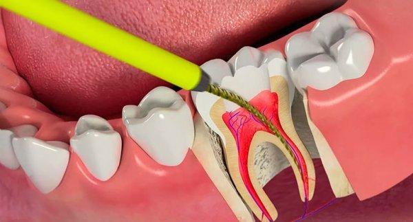 Плюсы и минусы витального метода экстирпации пульпы зуба