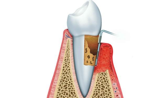 Определение пародонтальных индексов в стоматологии