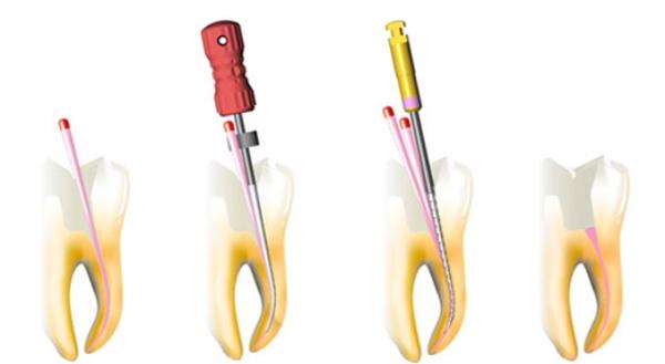 Гуттаперчевый штифт в стоматологии фото