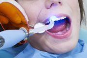 Установка световой пломбы на передний зуб